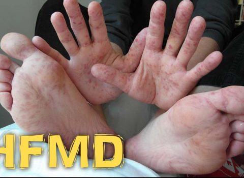 Panduan Menghadapi Virus HFMD